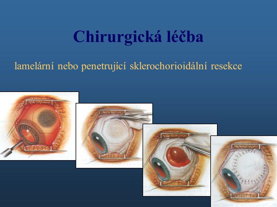 Chirurgická léčba lamelární nebo penetrující sklerochorioidální resekce