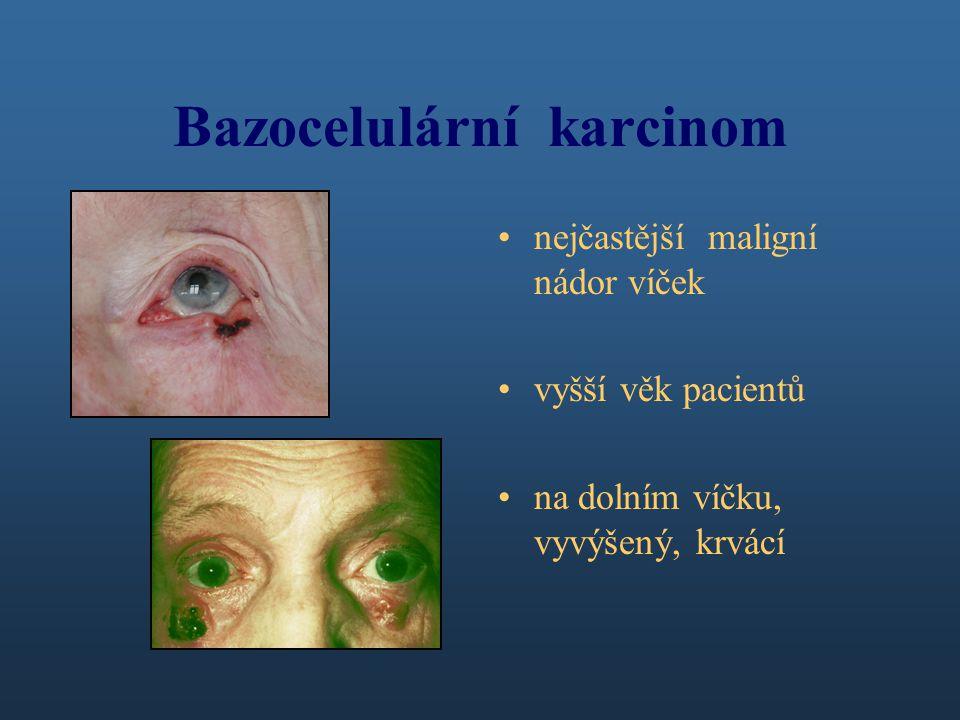 Bazocelulární karcinom