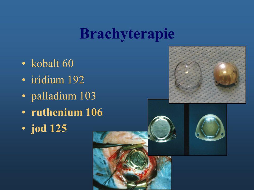 Brachyterapie kobalt 60 iridium 192 palladium 103 ruthenium 106
