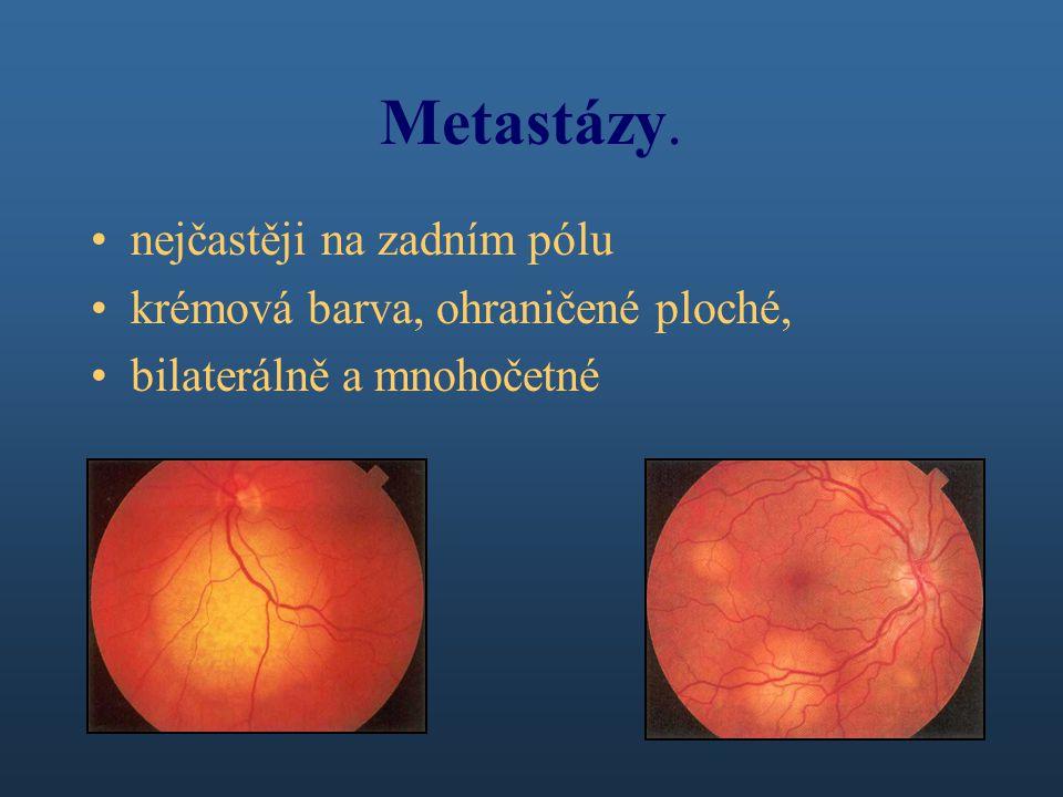 Metastázy. nejčastěji na zadním pólu krémová barva, ohraničené ploché,