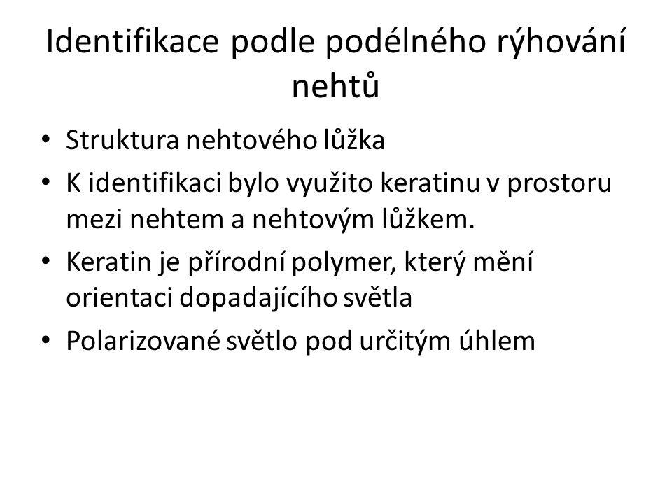 Identifikace podle podélného rýhování nehtů