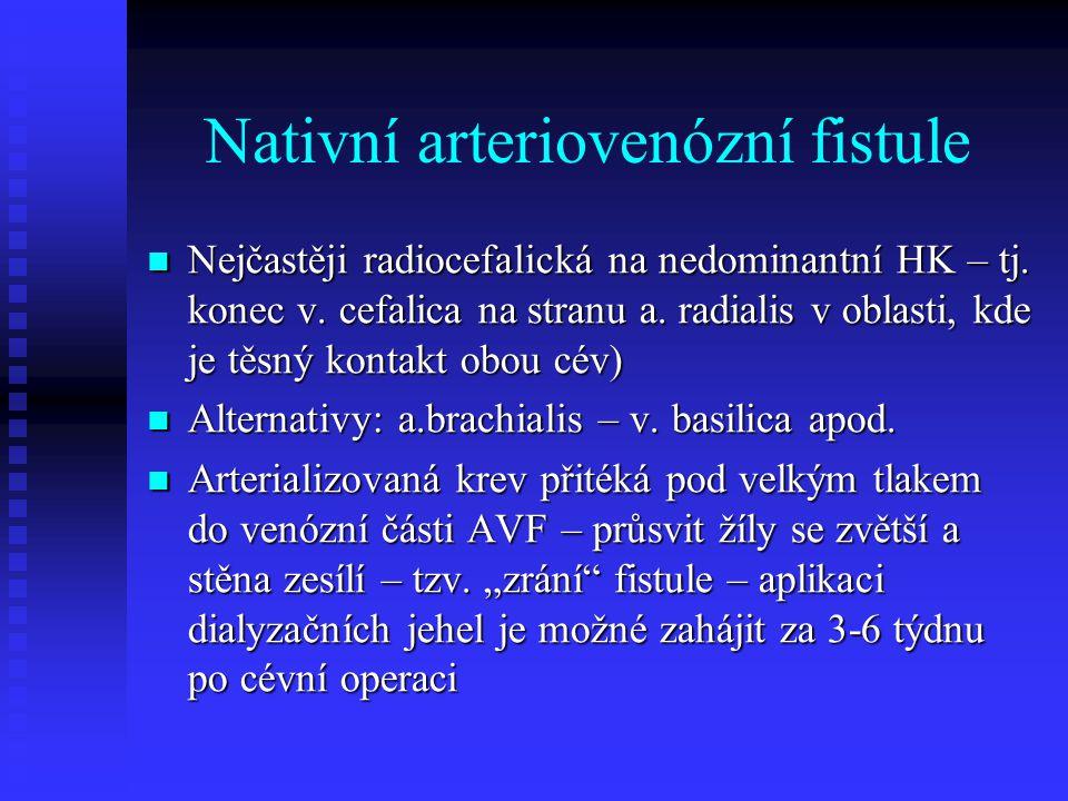 Nativní arteriovenózní fistule