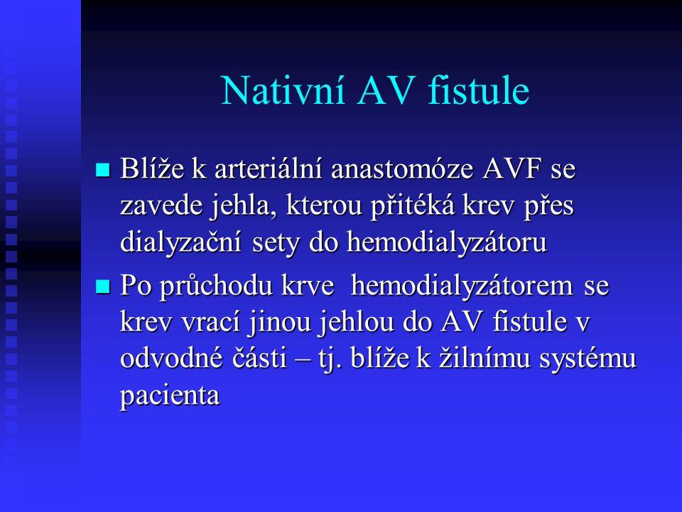 Nativní AV fistule Blíže k arteriální anastomóze AVF se zavede jehla, kterou přitéká krev přes dialyzační sety do hemodialyzátoru.