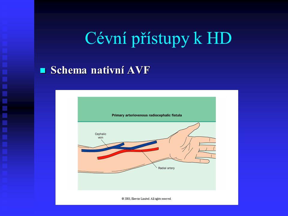 Cévní přístupy k HD Schema nativní AVF
