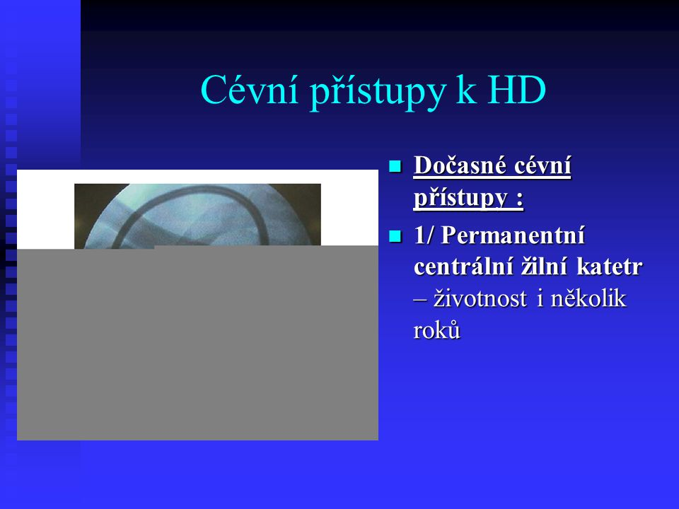 Cévní přístupy k HD Dočasné cévní přístupy :