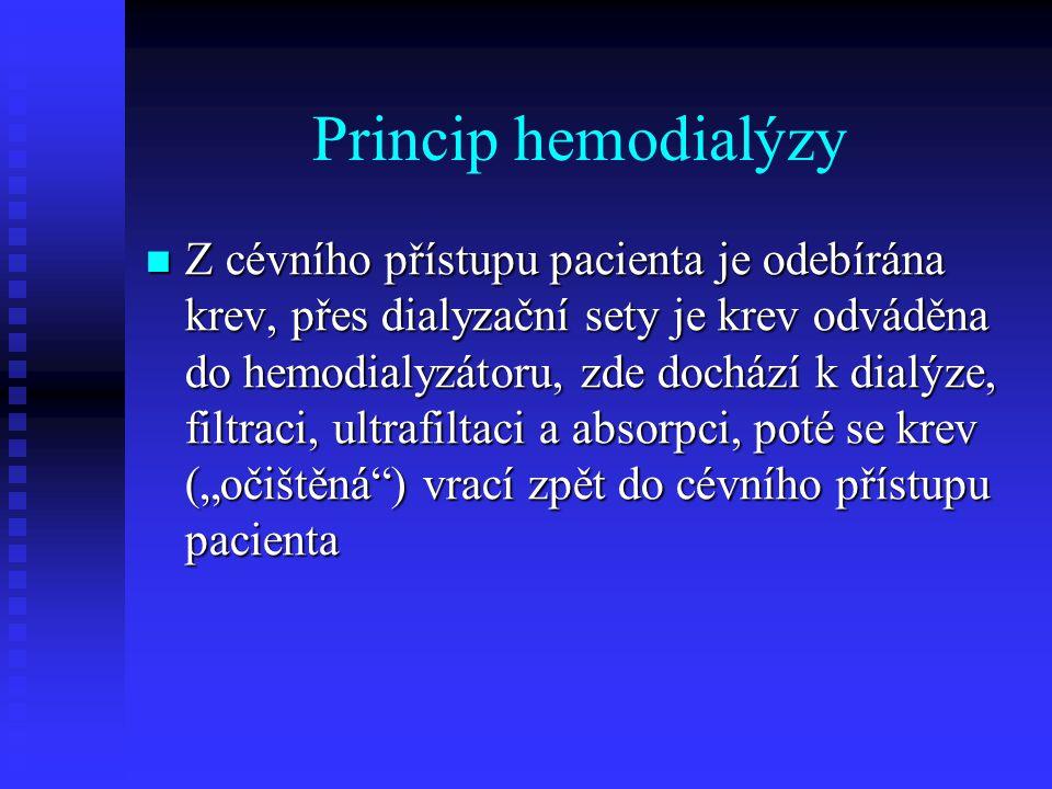 Princip hemodialýzy