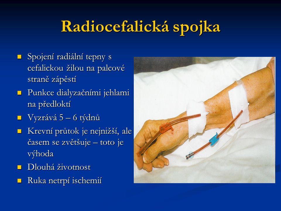 Radiocefalická spojka