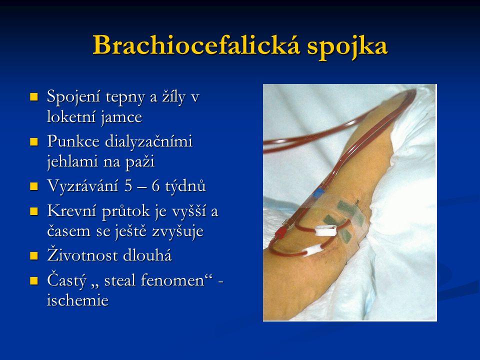 Brachiocefalická spojka