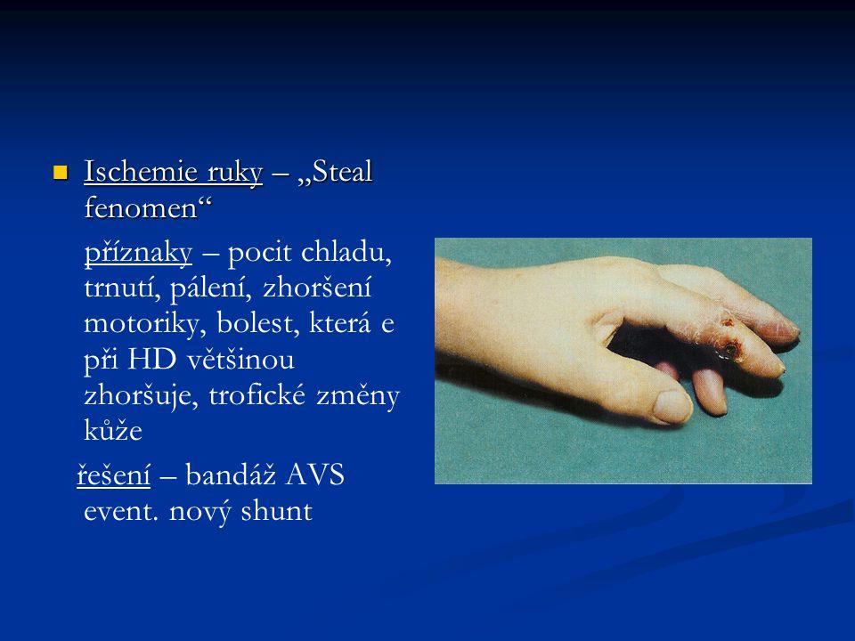"""Ischemie ruky – """"Steal fenomen"""