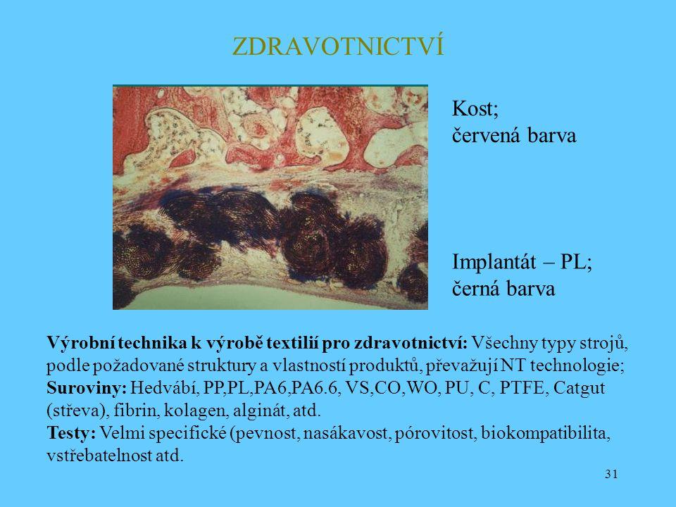 ZDRAVOTNICTVÍ Kost; červená barva Implantát – PL; černá barva