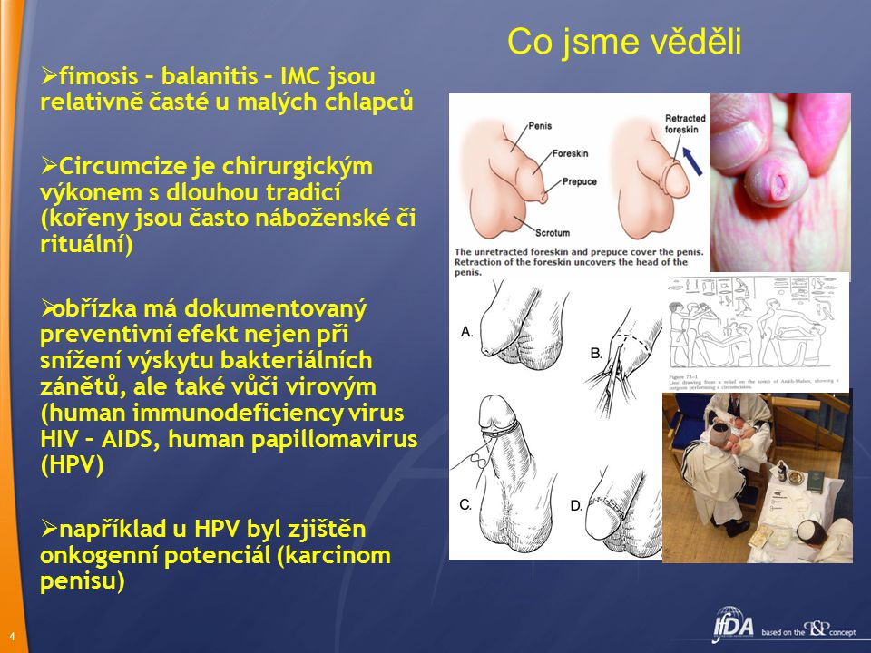 Co jsme věděli fimosis – balanitis – IMC jsou relativně časté u malých chlapců.