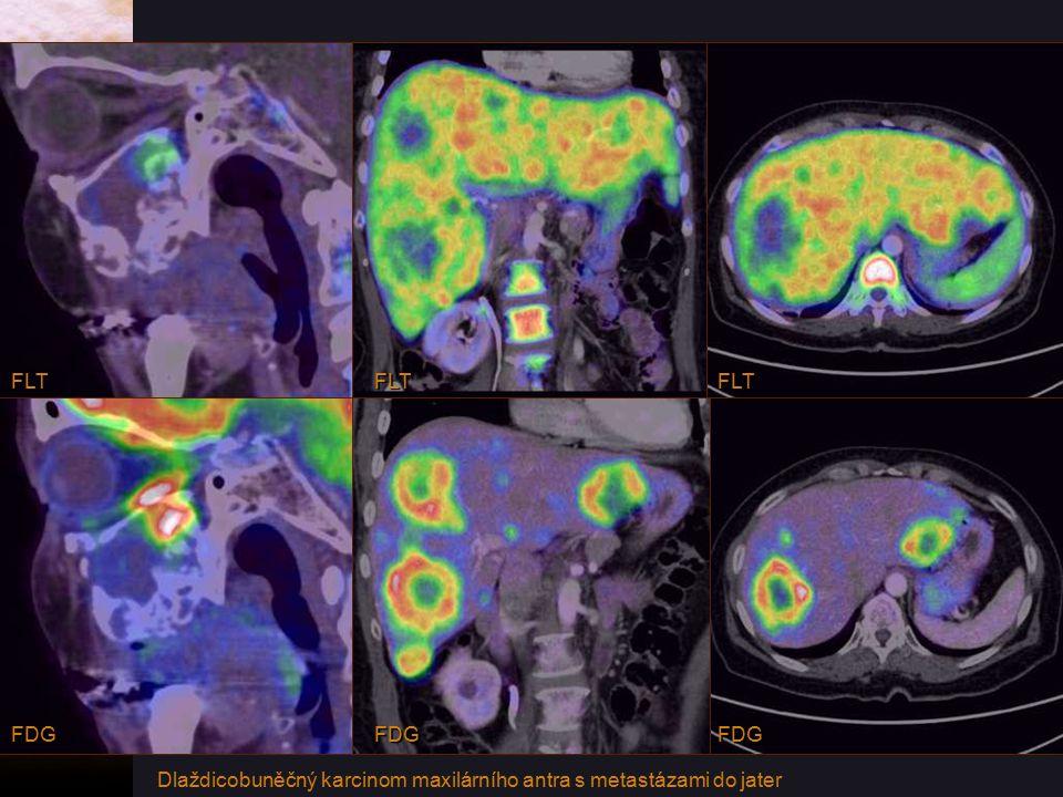 FLT FLT FLT FDG FDG FDG Dlaždicobuněčný karcinom maxilárního antra s metastázami do jater