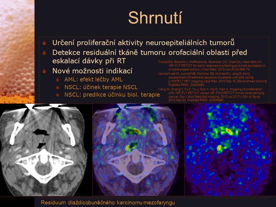 Shrnutí Určení proliferační aktivity neuroepiteliálních tumorů
