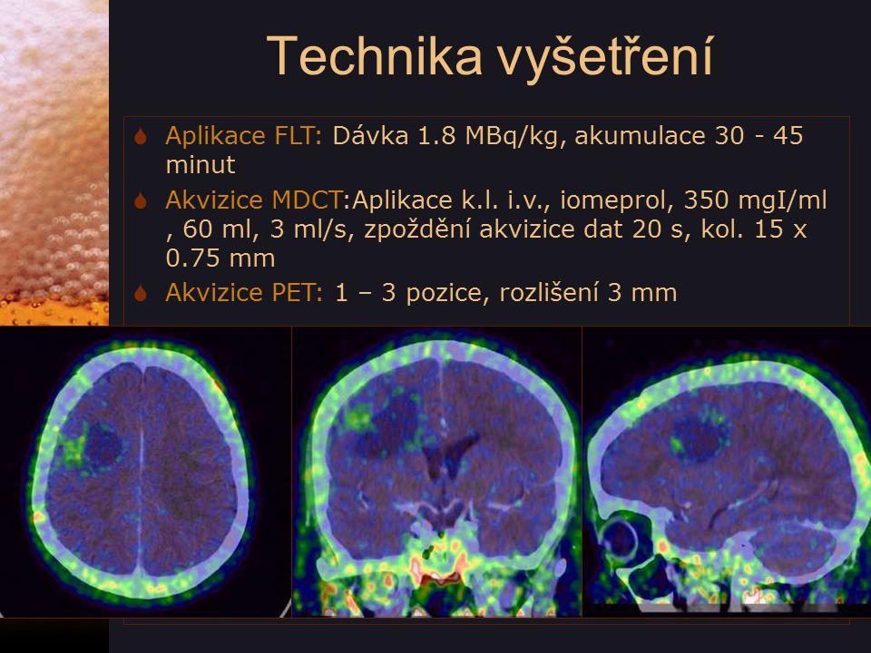 Technika vyšetření Aplikace FLT: Dávka 1.8 MBq/kg, akumulace 30 - 45 minut.