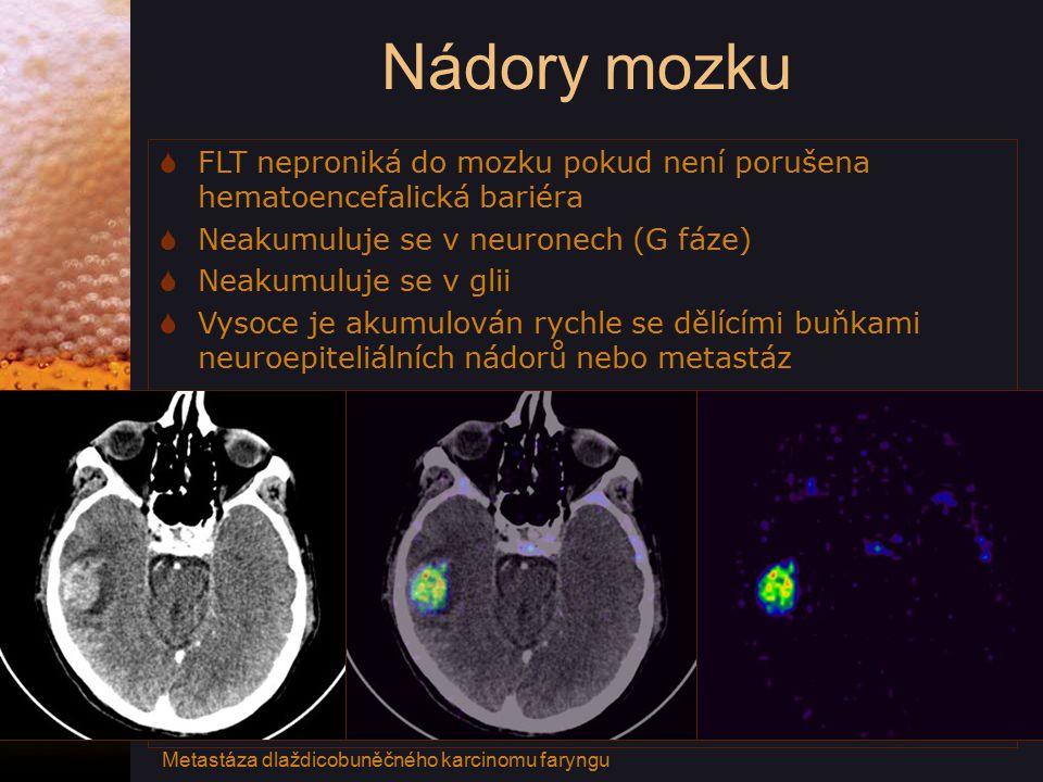 Nádory mozku FLT neproniká do mozku pokud není porušena hematoencefalická bariéra. Neakumuluje se v neuronech (G fáze)