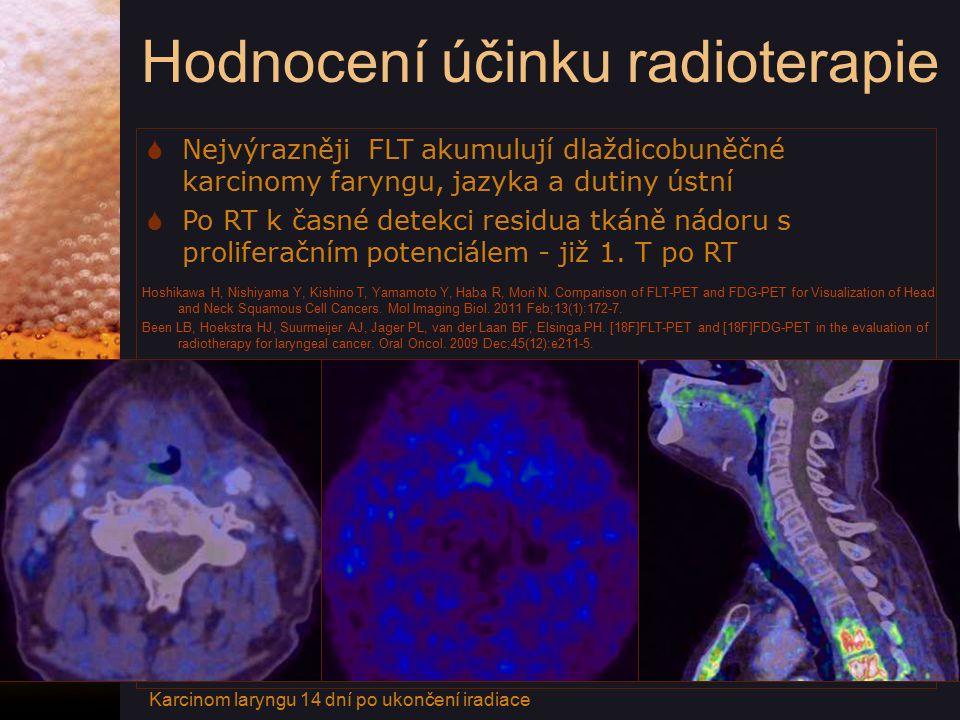 Hodnocení účinku radioterapie