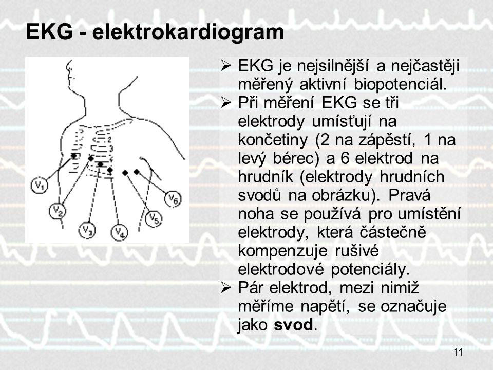 EKG - elektrokardiogram
