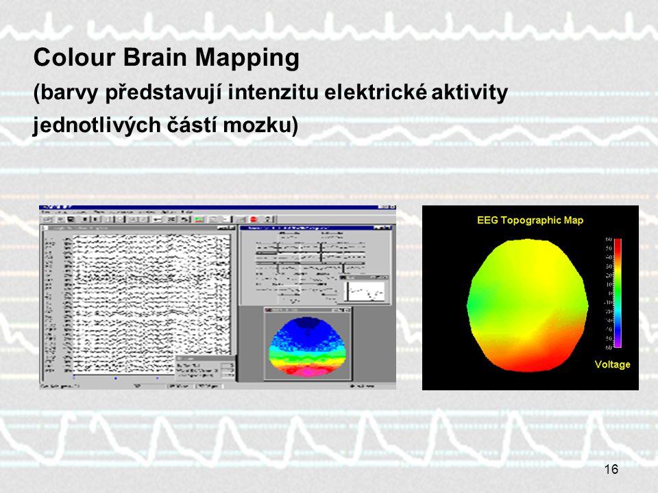Colour Brain Mapping (barvy představují intenzitu elektrické aktivity jednotlivých částí mozku)