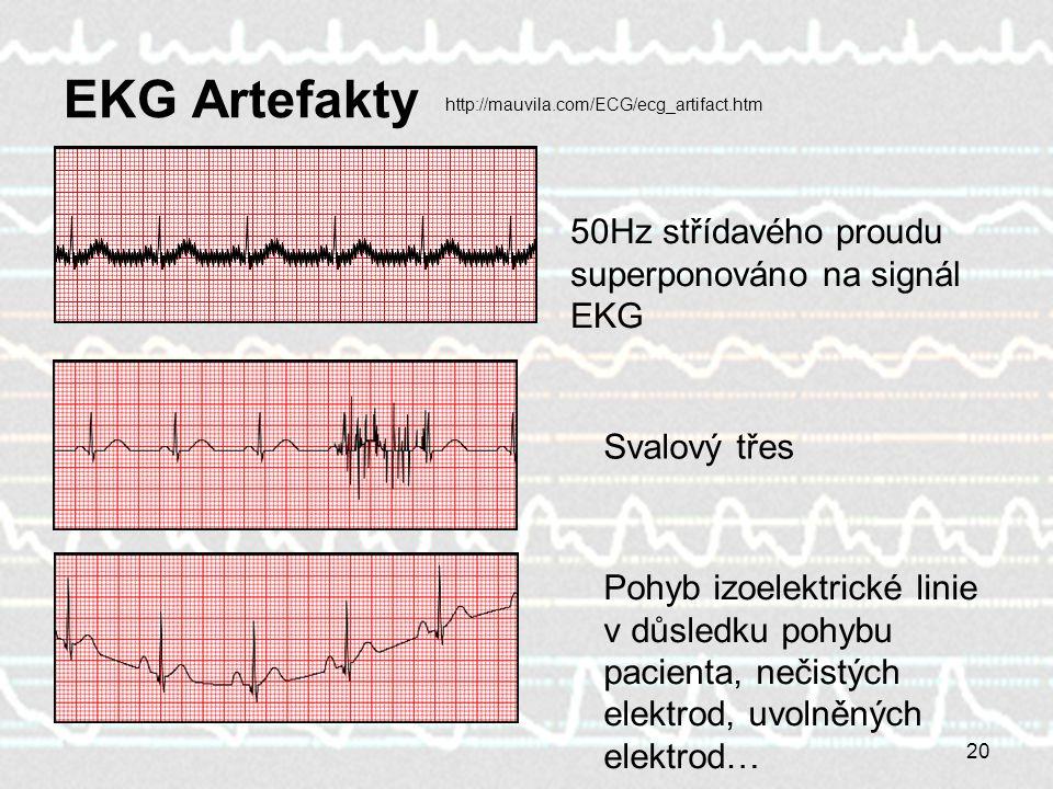 EKG Artefakty 50Hz střídavého proudu superponováno na signál EKG