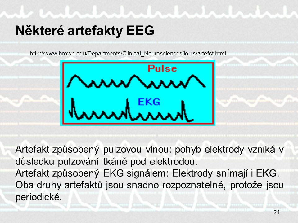 Některé artefakty EEG http://www.brown.edu/Departments/Clinical_Neurosciences/louis/artefct.html.
