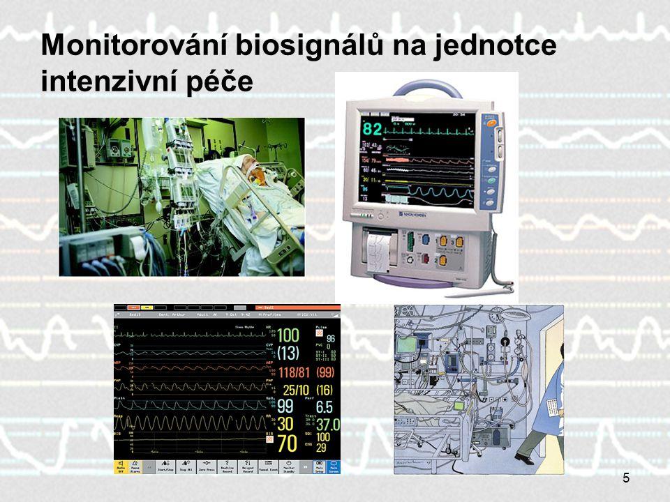 Monitorování biosignálů na jednotce intenzivní péče