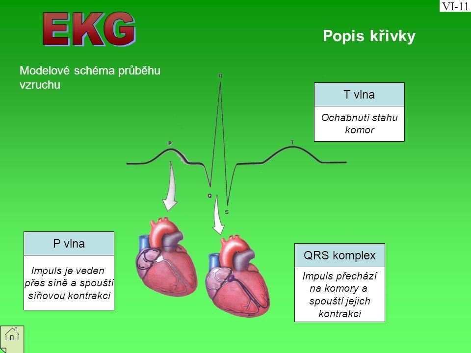 EKG Popis křivky VI-11 Modelové schéma průběhu vzruchu T vlna P vlna