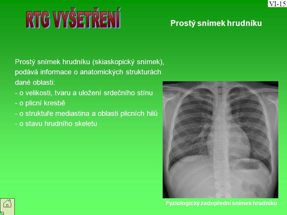 RTG VYŠETŘENÍ Prostý snímek hrudníku VI-15