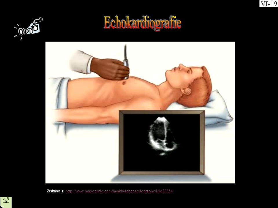 VI-19 Echokardiografie Získáno z: http://www.mayoclinic.com/health/echocardiography/MM00054