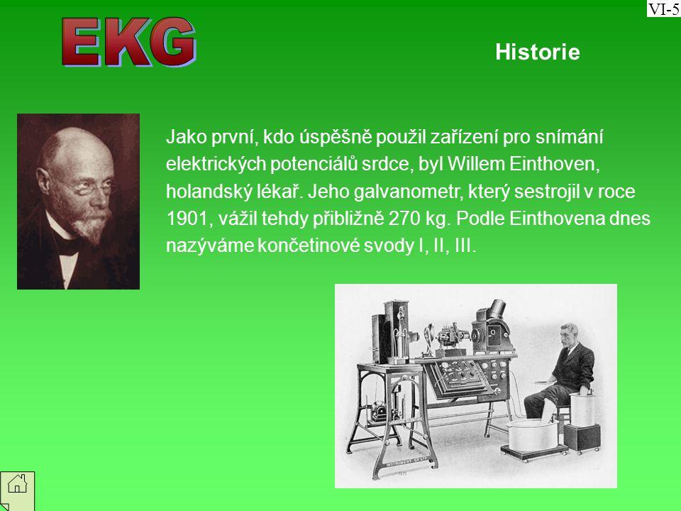 VI-5 EKG. Historie.