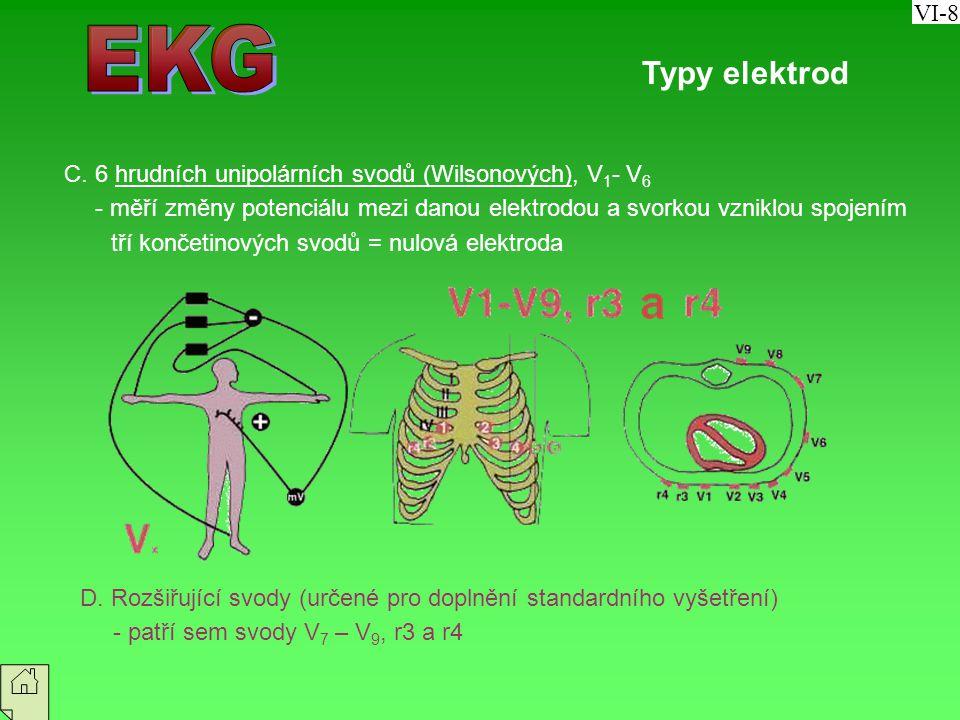 VI-8 EKG. Typy elektrod. C. 6 hrudních unipolárních svodů (Wilsonových), V1- V6.