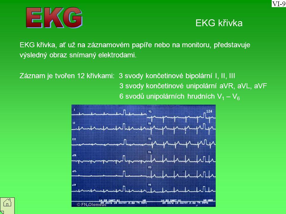 VI-9 EKG. EKG křivka. EKG křivka, ať už na záznamovém papíře nebo na monitoru, představuje. výsledný obraz snímaný elektrodami.