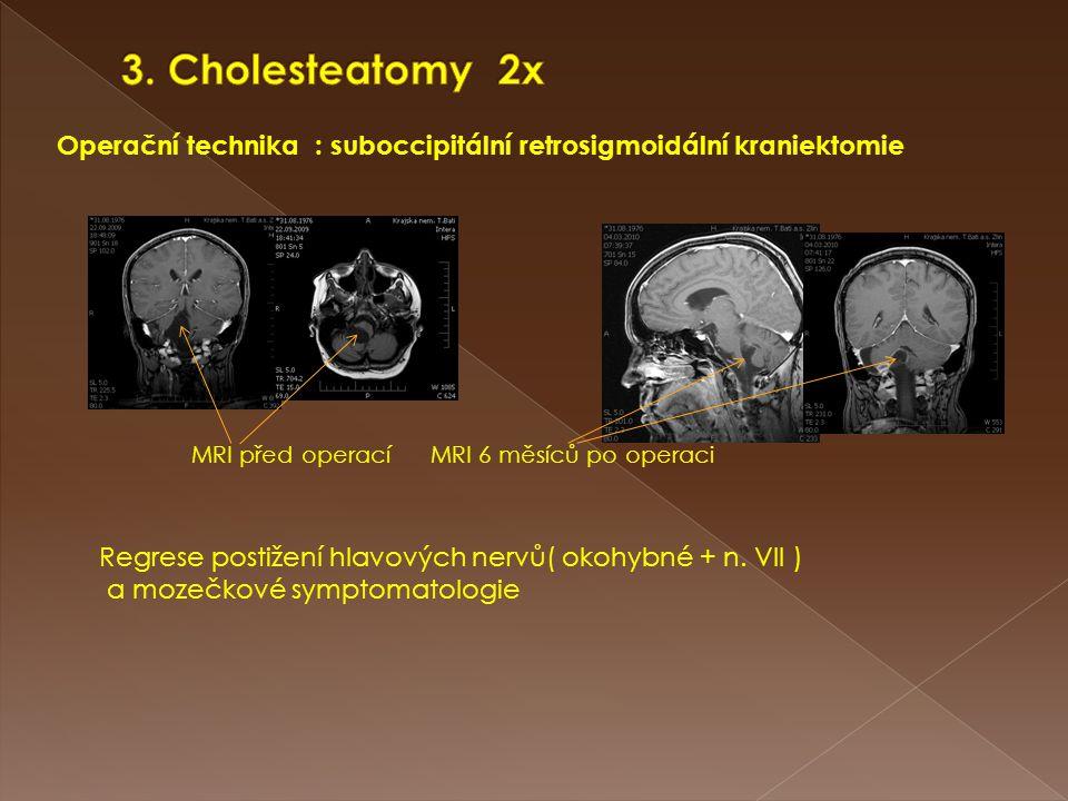 3. Cholesteatomy 2x Operační technika : suboccipitální retrosigmoidální kraniektomie. MRI před operací MRI 6 měsíců po operaci.