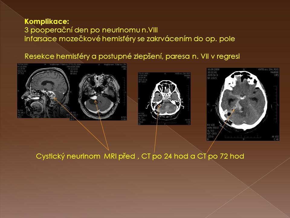 Komplikace: 3 pooperační den po neurinomu n.VIII. infarsace mozečkové hemisféry se zakrvácením do op. pole.