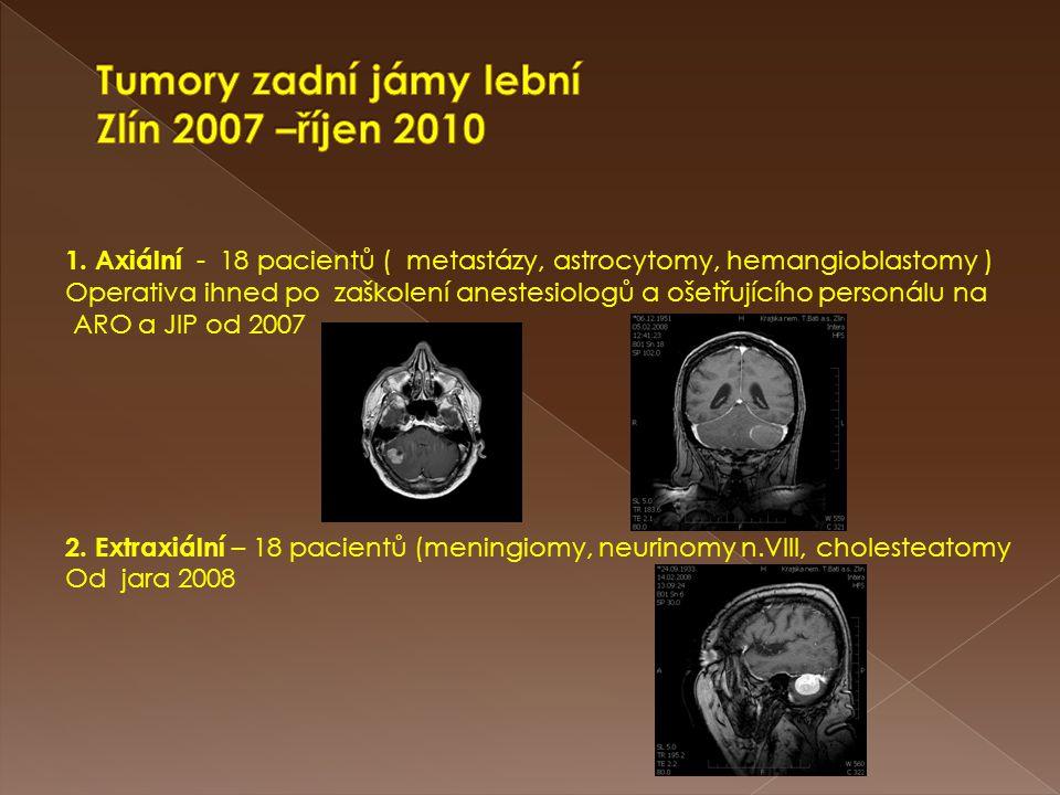 Tumory zadní jámy lební Zlín 2007 –říjen 2010