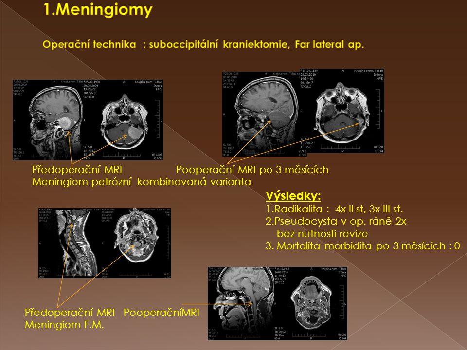1.Meningiomy Operační technika : suboccipitální kraniektomie, Far lateral ap.