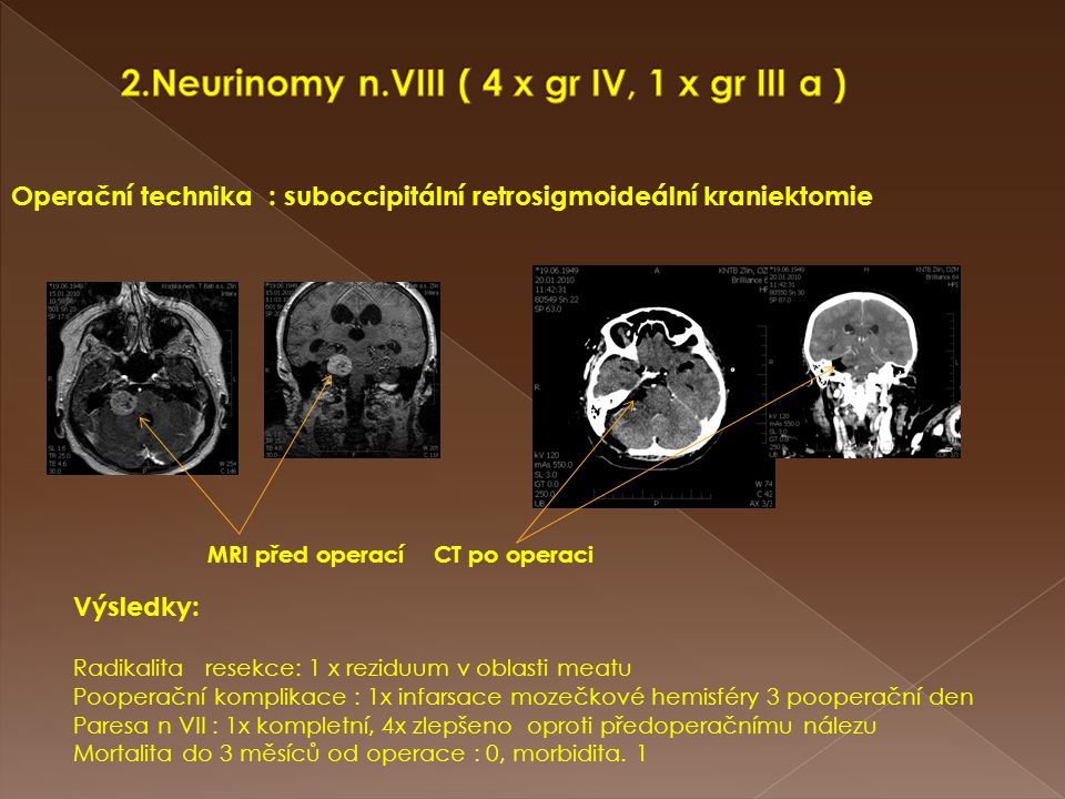 2.Neurinomy n.VIII ( 4 x gr IV, 1 x gr III a )