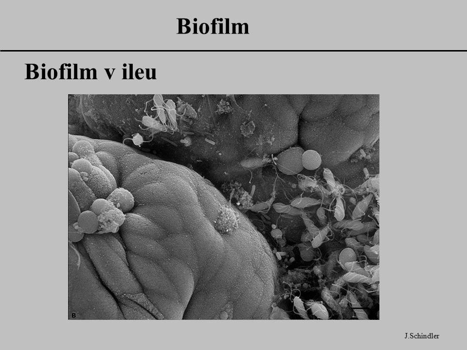 Biofilm Biofilm v ileu J.Schindler