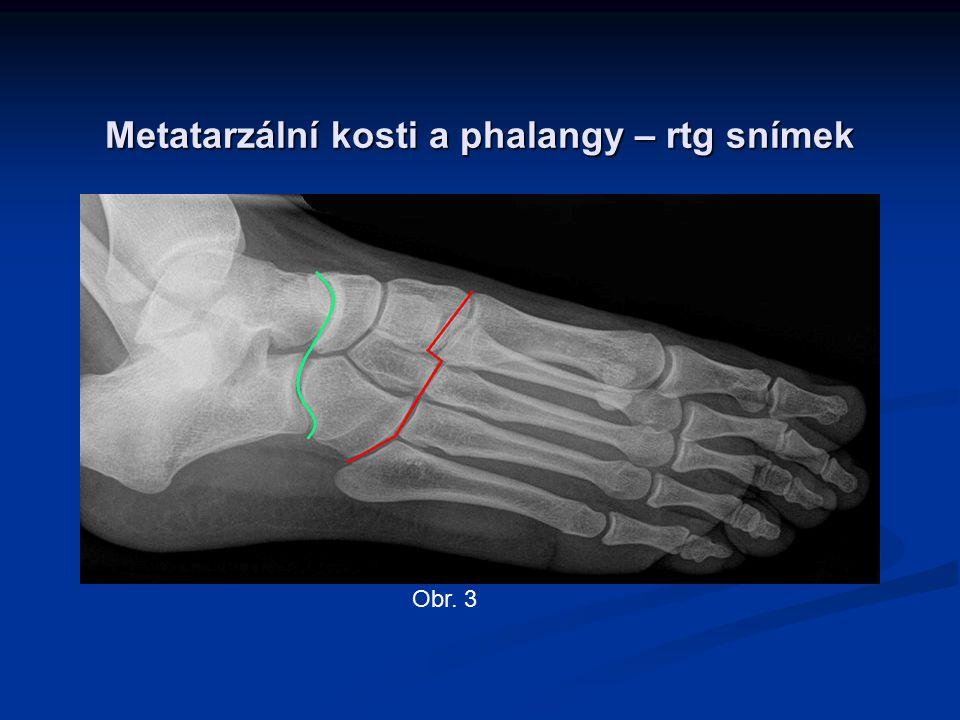 Metatarzální kosti a phalangy – rtg snímek