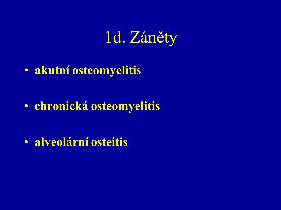 1d. Záněty akutní osteomyelitis chronická osteomyelitis