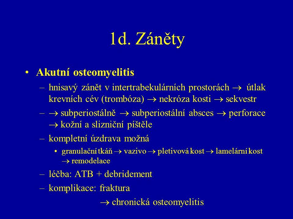 1d. Záněty Akutní osteomyelitis