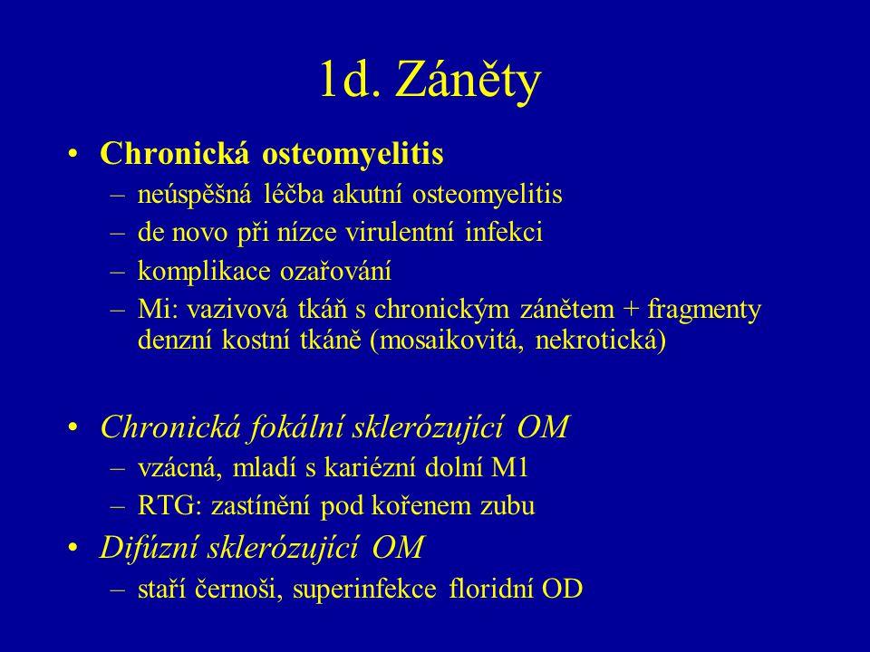 1d. Záněty Chronická osteomyelitis Chronická fokální sklerózující OM