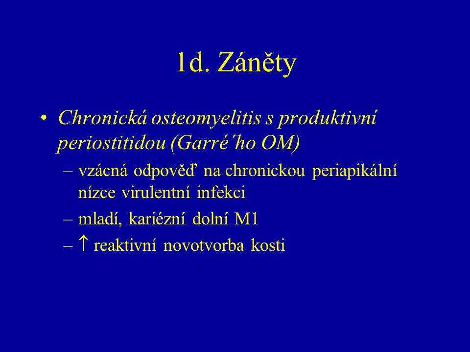 1d. Záněty Chronická osteomyelitis s produktivní periostitidou (Garré´ho OM) vzácná odpověď na chronickou periapikální nízce virulentní infekci.