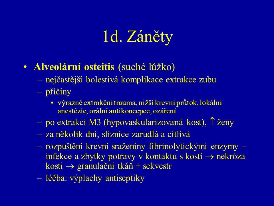 1d. Záněty Alveolární osteitis (suché lůžko)