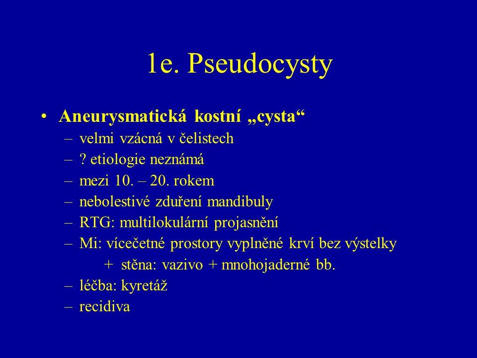 """1e. Pseudocysty Aneurysmatická kostní """"cysta velmi vzácná v čelistech"""