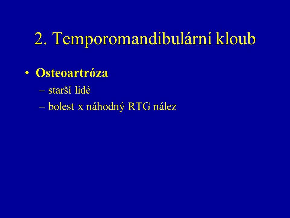 2. Temporomandibulární kloub