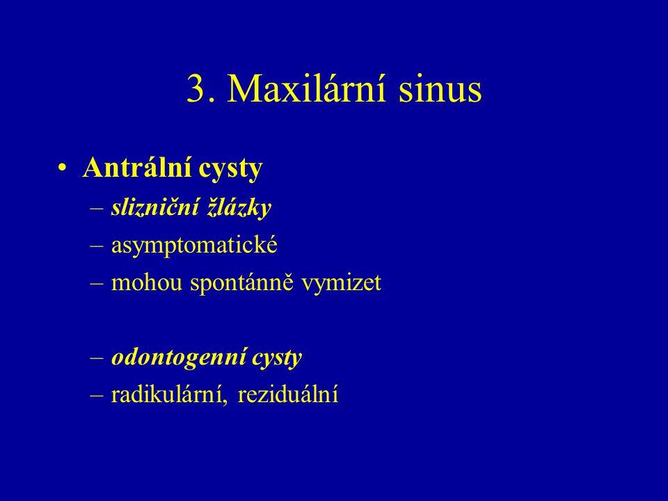 3. Maxilární sinus Antrální cysty slizniční žlázky asymptomatické