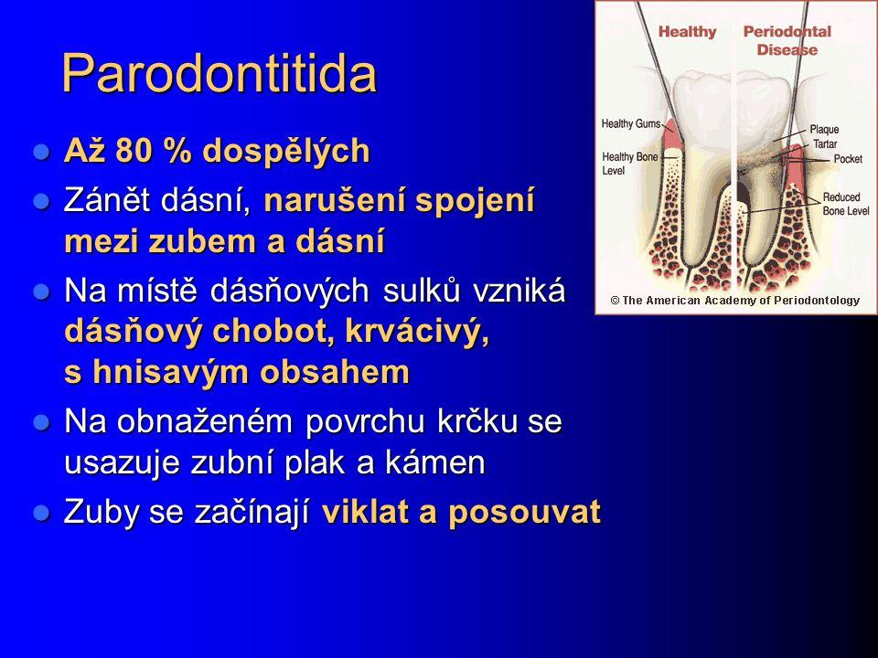 Parodontitida Až 80 % dospělých