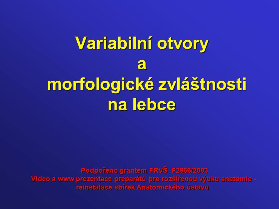Variabilní otvory a morfologické zvláštnosti na lebce