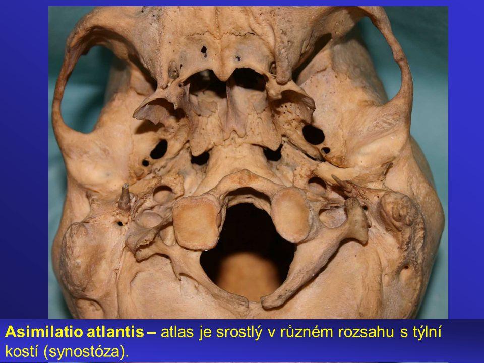 Asimilatio atlantis – atlas je srostlý v různém rozsahu s týlní kostí (synostóza).