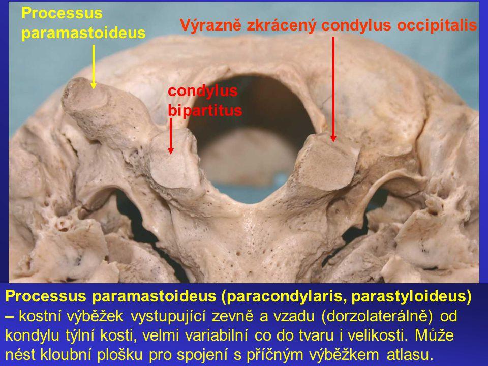 Processus paramastoideus